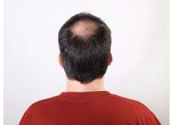 头顶没有头发的男人