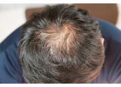低头头顶少头发的男人